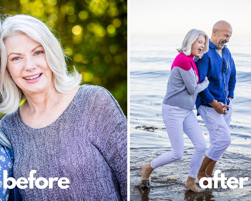 Genotropin Results - Before & After - Galina, 61 years old