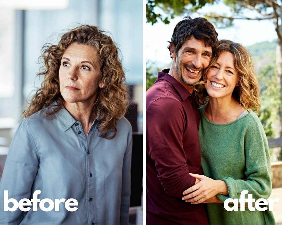 Humatrope Results - Before and After - Mature Woman
