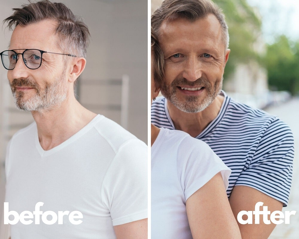 Norditropin Before & After Results, Mike 44 yo