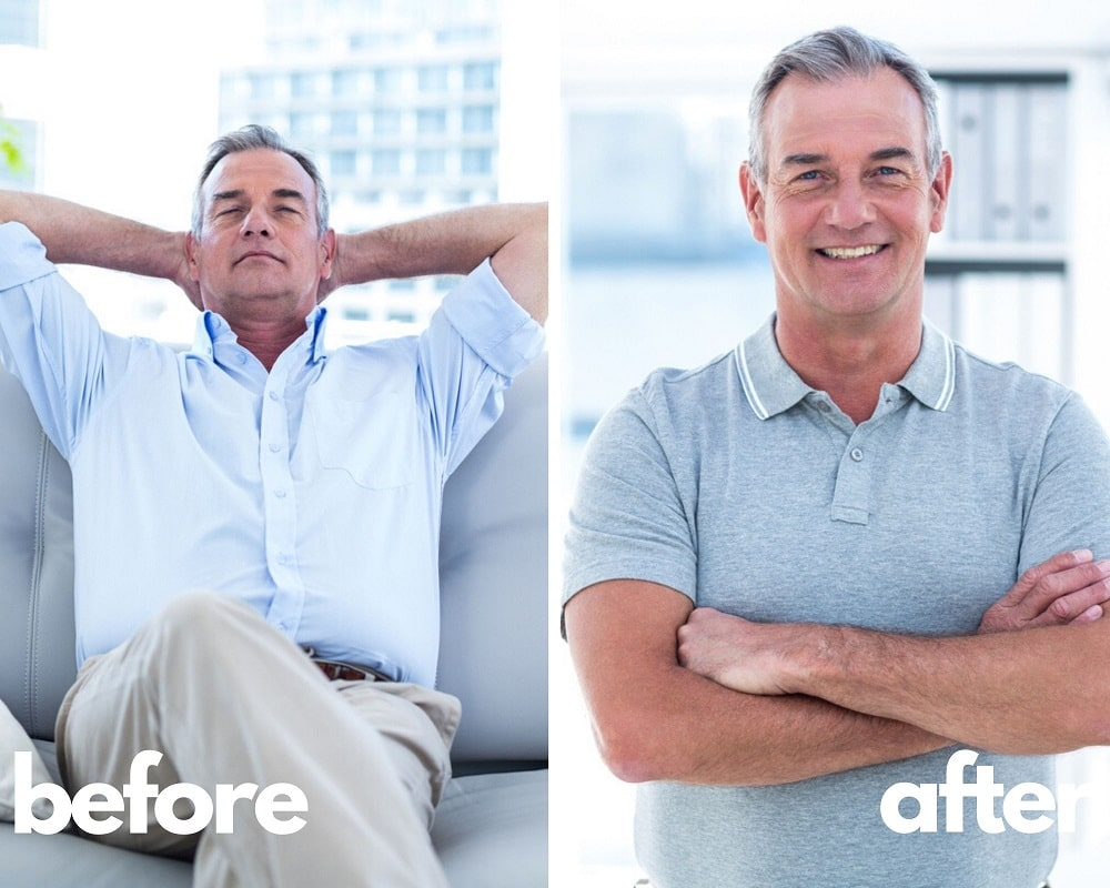 Before and After Omnitrope Results of Brandon, 63 yo