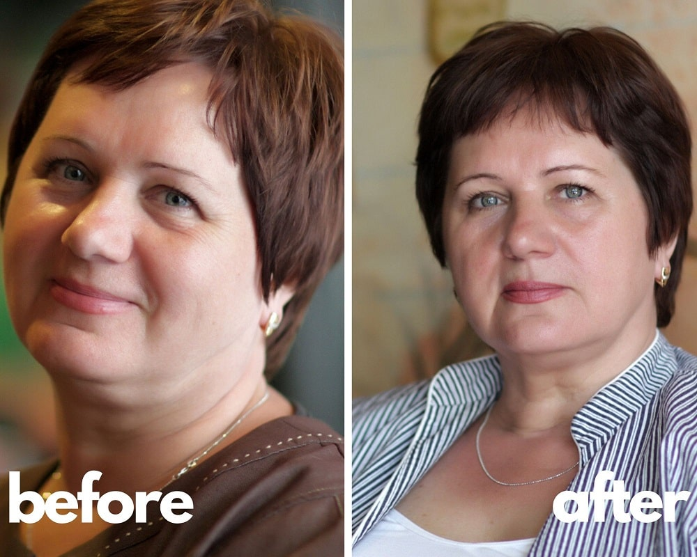 Before and After Saizen Results of Martha, 54 yo