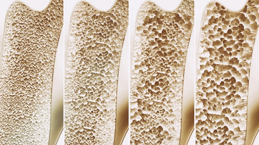 4 Stages of Osteoporosis