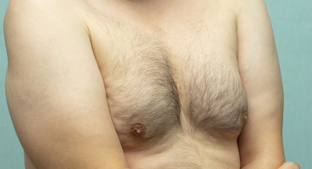 Gynecomastia - Can Low Testosterone Lead to Gynecomastia