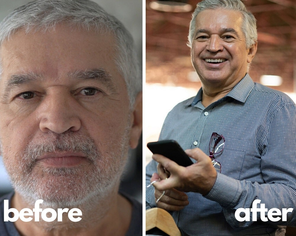 Sermorelin Results Before and After, Tom 61 yo