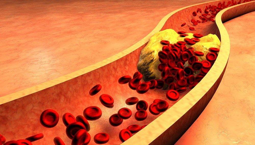 Clogged Artery with platelets and cholesterol plaque, concept for health risk for obesity or dieting and nutrition problems-min
