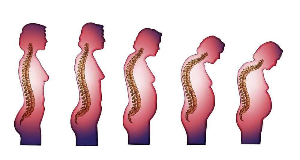 he most common osteoporosis symptoms include - stooped posture